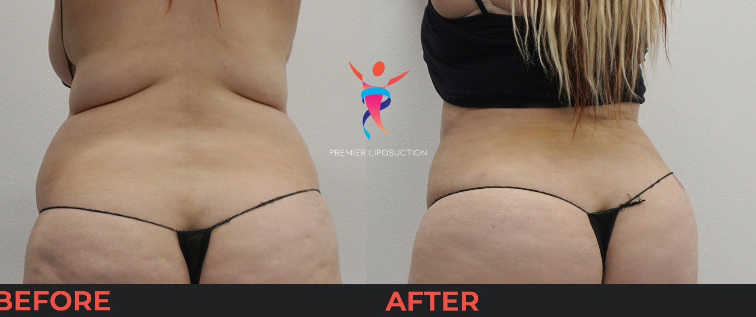 upper back and hip liposuction before and after
