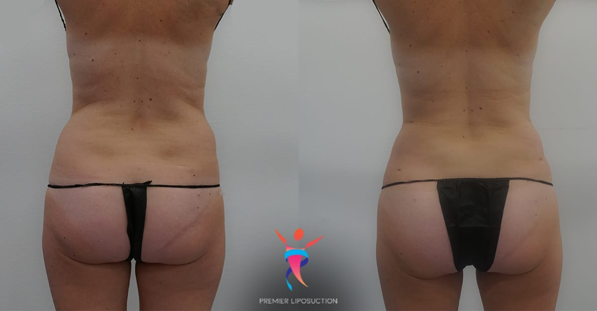 Lower back/hip rolls liposuction before & after