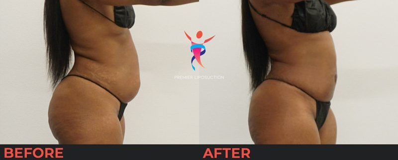 belly liposuction before and after