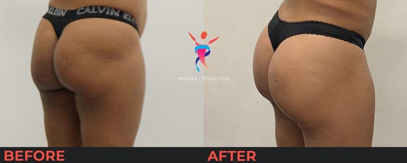 butt lift before and after