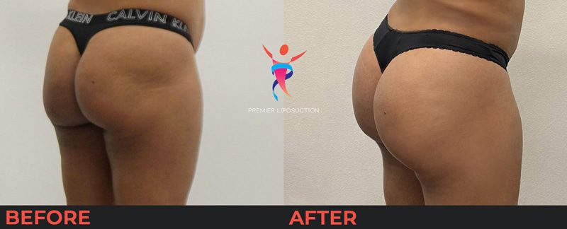 butt lift before and after results