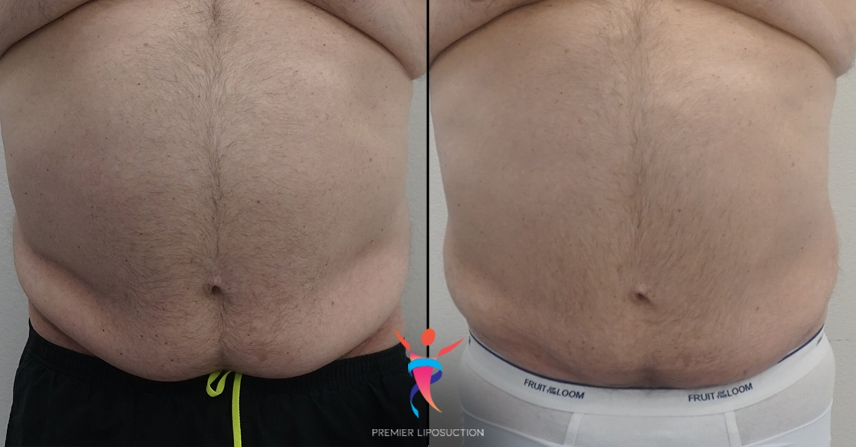 Pannus liposuction before and after