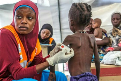 Starvation: Photo of 6-year-old child receiving treatment in northern Nigeria