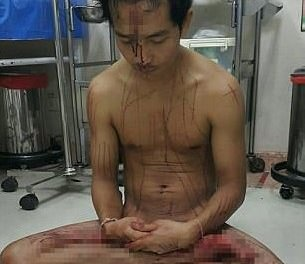 Thai man cuts his own manhood out of excitement from watching porn
