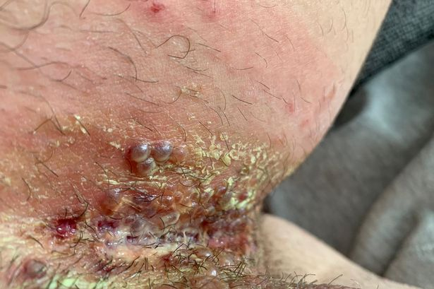 26-year-old man in hospital after burning groin with hair removal cream