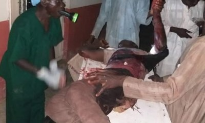 photos of doctor operating on seriously injured patient under torchlight in Jigawa State