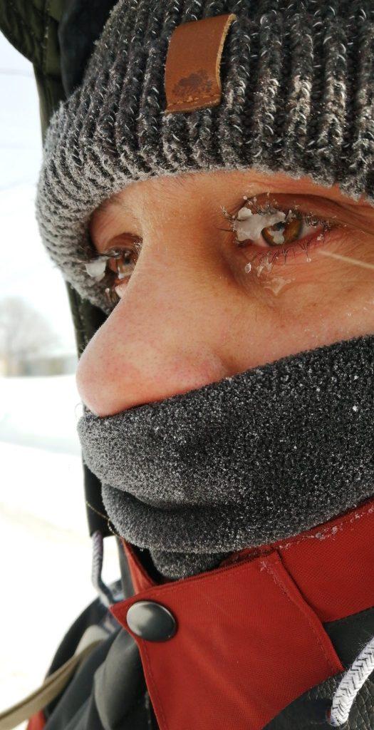 oeil gelé glace