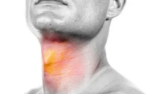 Cayenne pepper - sore throat