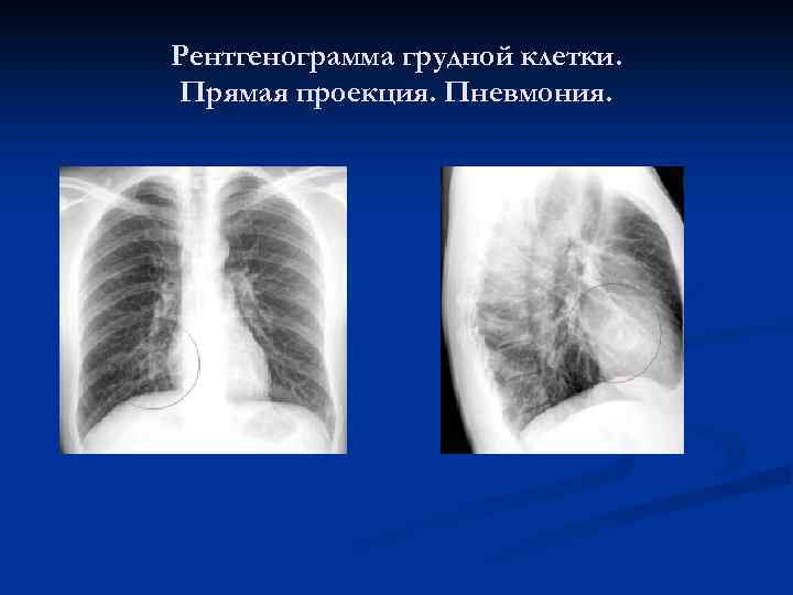 a tüdőgyulladás súlycsökkenést okoz