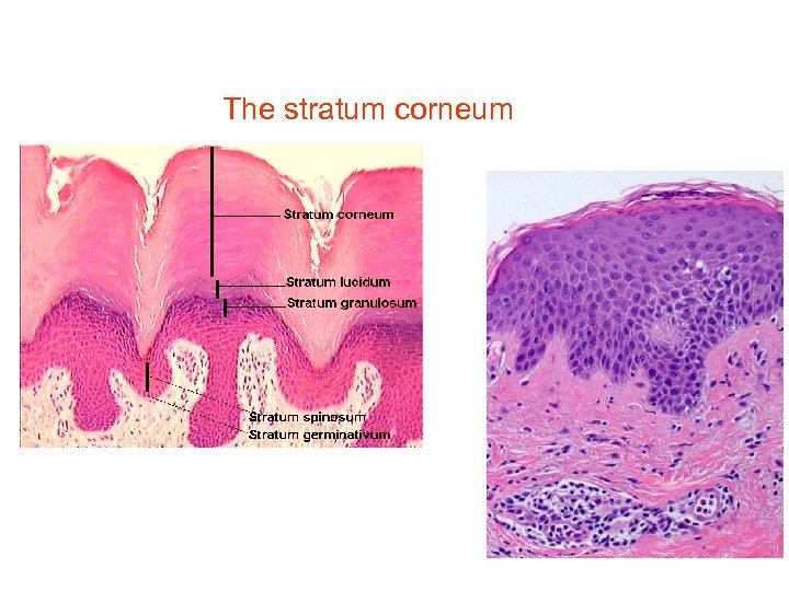 Stratum corneum How does your body keep