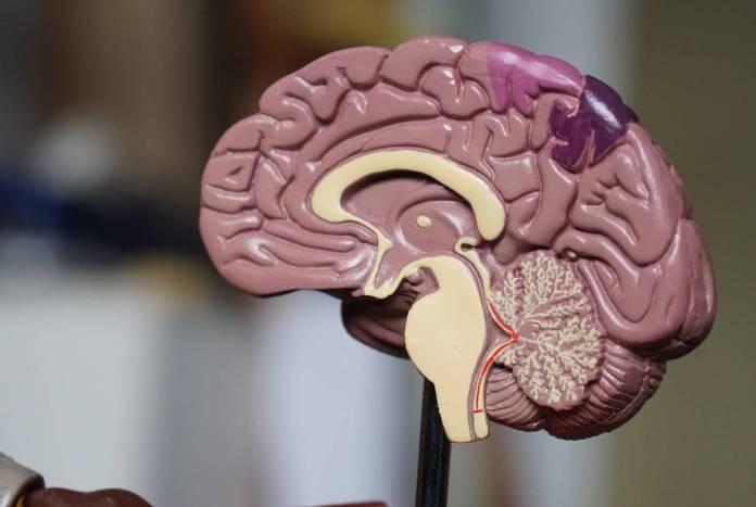 tratamento para esclerose múltipla pediátrica