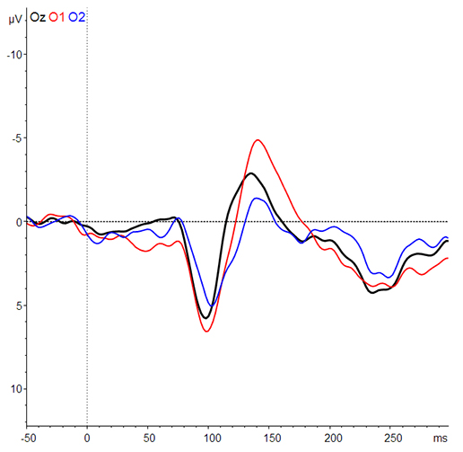 Photo Sensor - VER: Single subject visual-evoked potentials (VEPs) measured at channel Oz (black), O1 (red) and O2 (blue). The data was recorded at the SfN conference as depicted by the (photo2 – update the reference). The raw data was filtered (band pass 1 – 45 Hz), baseline corrected and averaged (number of trials: 129). P100 and N150 are clearly visible, similarly to the publication by Sandmann (2012).