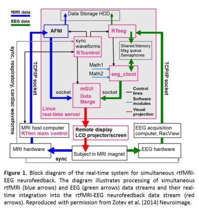 Integration of concurrent real-time fMRI and EEG data: Figure 1