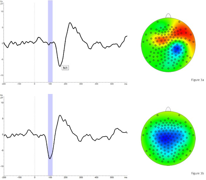 Support Tip - How to reprocess EEG data to correct offsets between EEG and coregistered markers: Figure 3 - Comparison between original and corrected N1 time course and topography