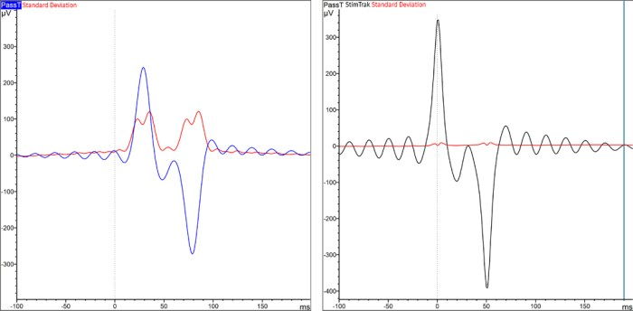 Figure 1 (left): Auditory stimulus without StimTrak. Blue: average of the auditory stimulus intensity, using the triggers provided by stimulation software. Red: standard deviation. Figure 2 (right): Auditory stimulus with StimTrak. Black: average of the auditory stimulus intensity, using the triggers provided by StimTrak. Red: standard deviation.