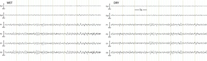 UR Dern: EEG data