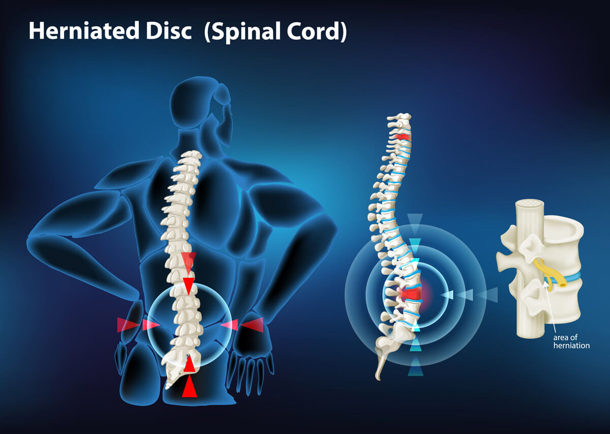 Lower back pain due to Lumbar disc herniation