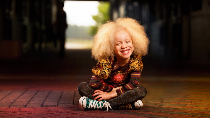 Albino Models Amp Black Women Hairstyles Hairstyles 2017