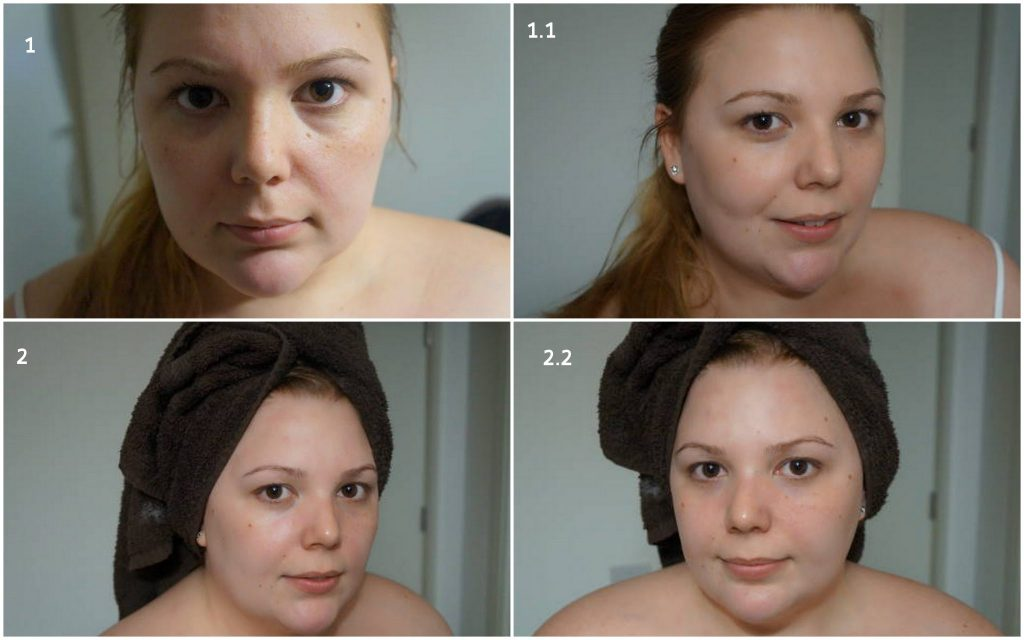 Before and After using a Dermaflannel