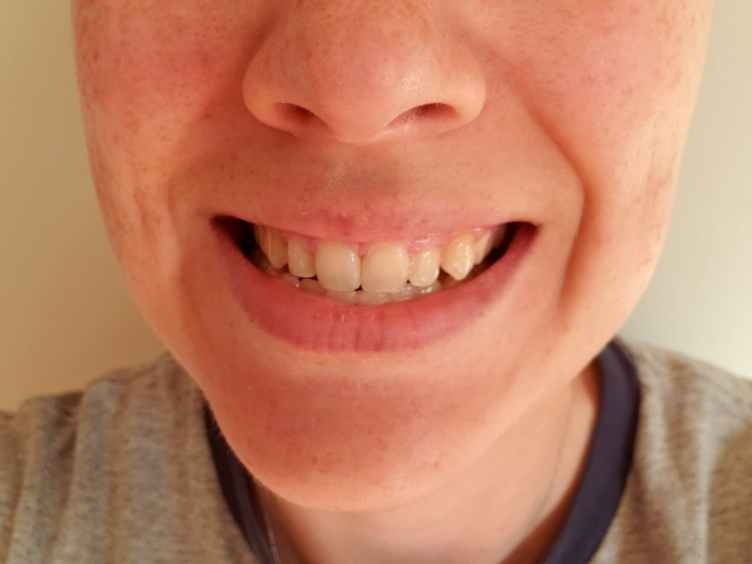 coffee stained teeth
