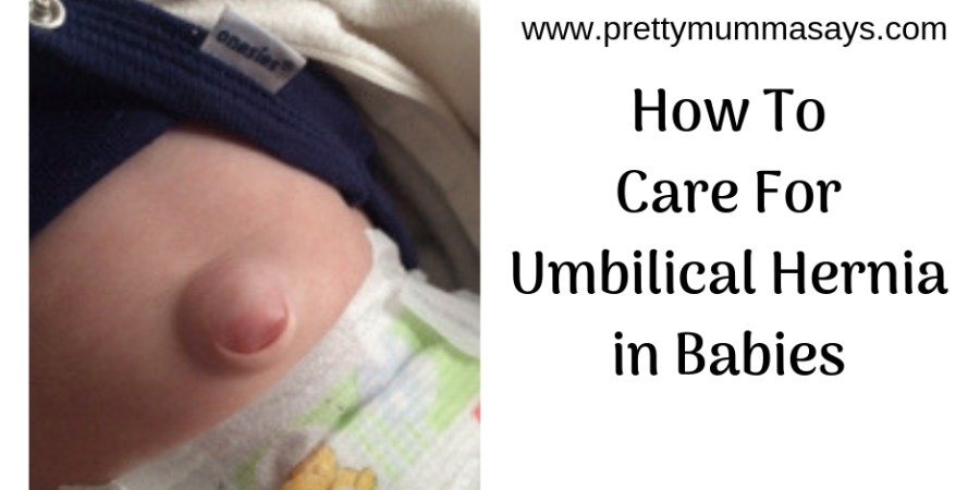 How To Care For Umbilical Hernia in Babies - Pretty Mumma Says #hernia #babies #umbilicalhernia #umbilicalcord #bellybutton #outie #kidshealth #babycare