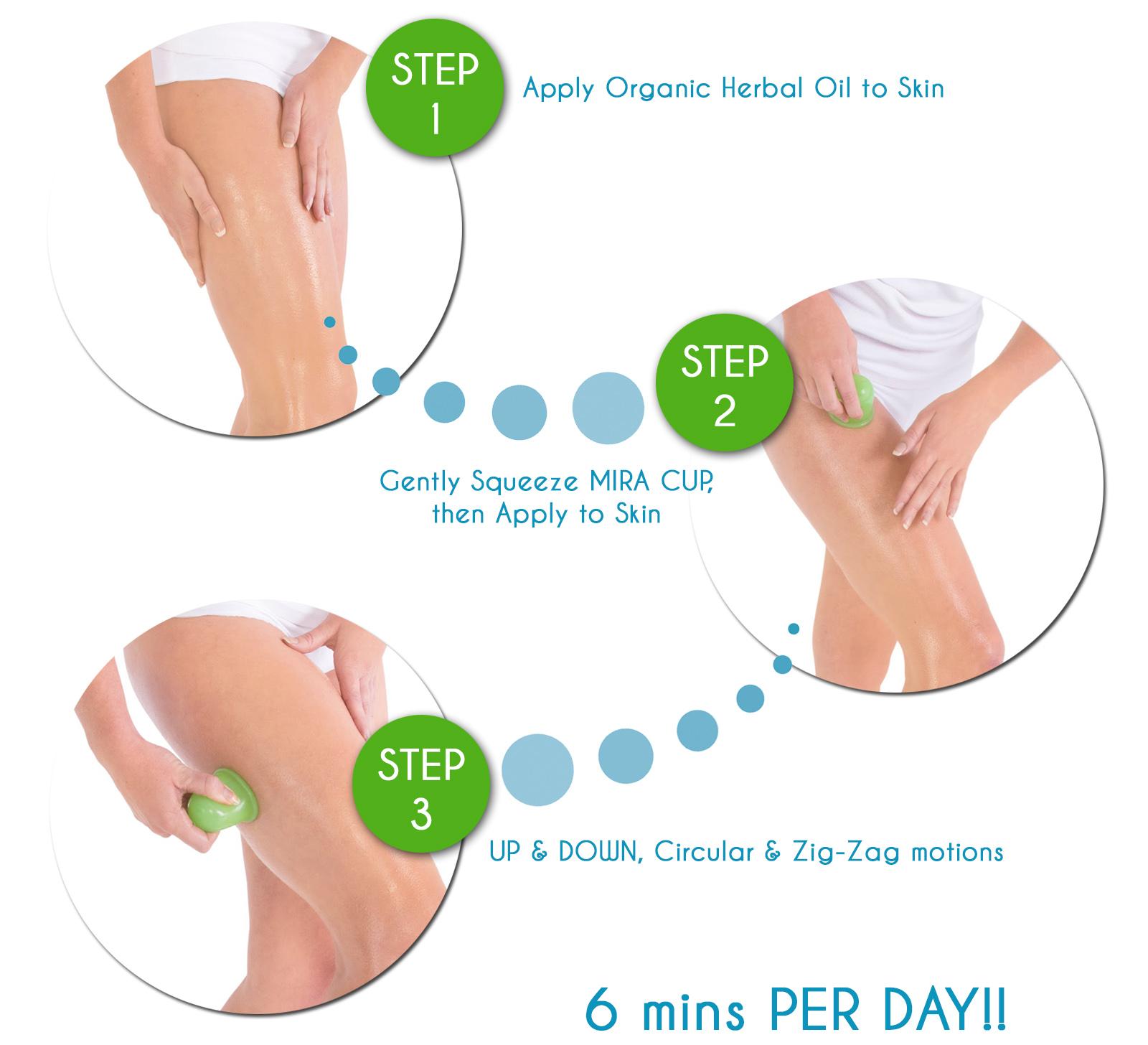 koppingmassage celluliter