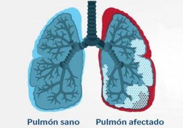 fibrosis pulonar