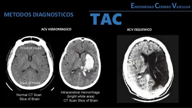 enfermedad-cerebro-vascular-20-638
