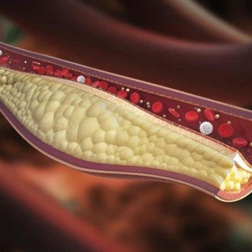 Colesterol y Dislipidemia