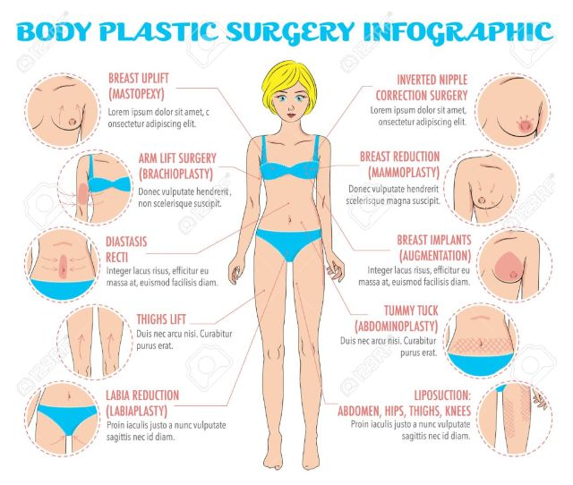 Body Plastic Surgery Infographics For Posters Brochures And Web Resources Breast Uplift Reduction