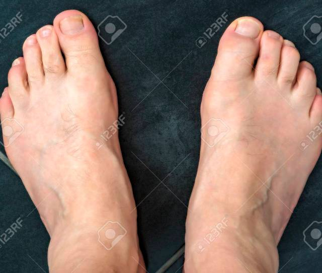 Naked Feet Of A Man  Stock Photo Picture And Royalty Free