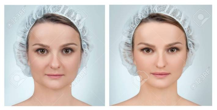 portrait of female face, before and after plastic surgery. anti