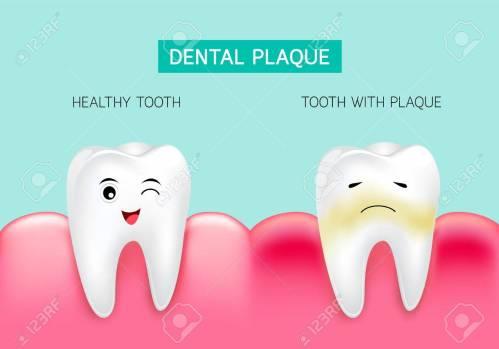 Plak di Dalam Mulut- Global Estetik Dental Care