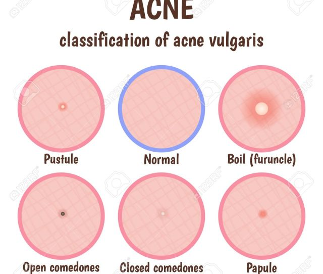Problem Skin With Pustules Acne Open Blackheads And Closed Comedones Whiteheads Stock Vector