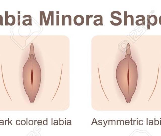 Labia Minora Shapes Stock Vector 104933692