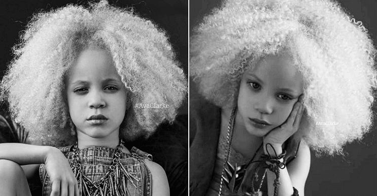 """Ava Clarke, la hermosa niña de """"raza negra"""" que sorprende Ava-clarke-la-nixa-albina-de-raza-negra-que-cautiva-en-el-mundo-de-la-moda-portada.png_1756298907"""