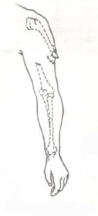 fractura abierta