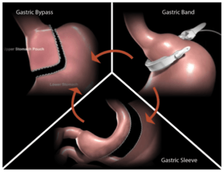 Lap band failure? Dr. Seun Sowemimo specializes in bariatric revision surgery.