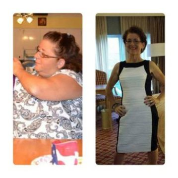 Polly Whalen before and after weight loss surgery with Dr. Seun Sowemimo in NJ