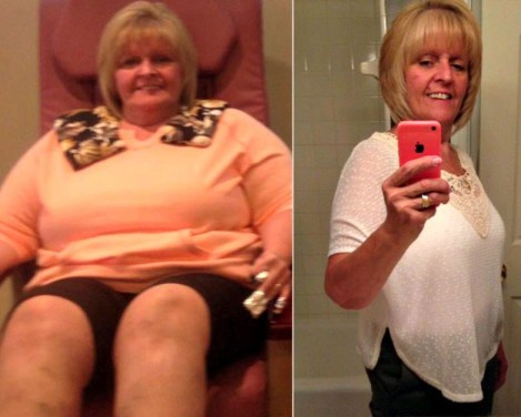 Sue S. before and after bariatric surgery at Prime Surgicare in Central NJ