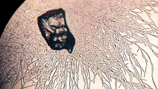 The fungus that eats waste plastics Plastic-2