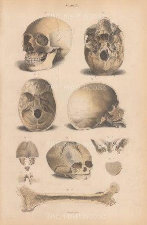 Skull: Anterior and Basilur view, Internal Basilur of Cranium, Vertical section, Fetal skull, and vertebra, patella and femor. Plate IV.