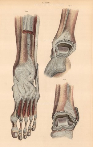 """William Home Lizars, dissection of foot and ankle, plate LIV. An original colour steel-engraving. 10"""" x 17"""". £POA."""