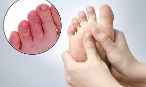 Svrab i crvenilo između nožnih prstiju, plihovi i neprijatan miris nogu. Možda imate atletsko stopalo