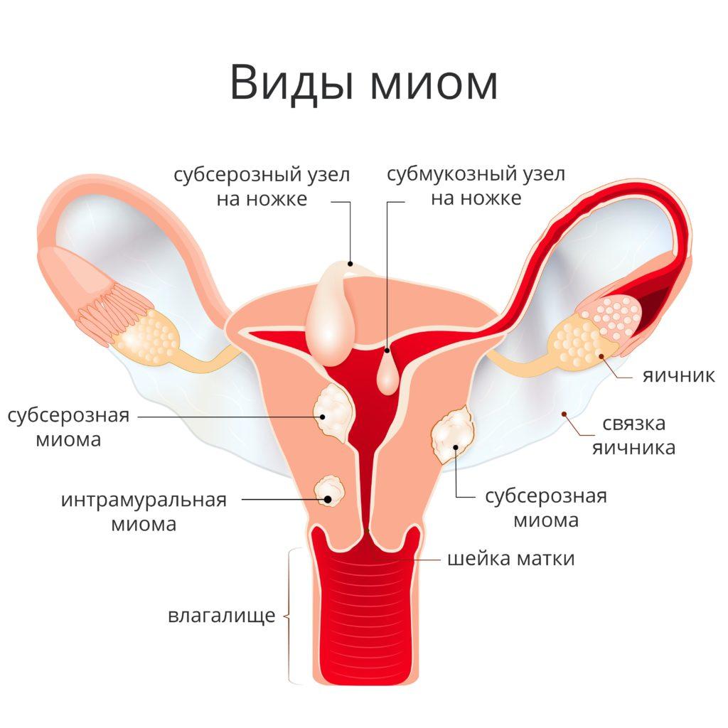 УЗИ миомы матки: описание патологии и ошибок её диагностирования. Как выглядит миома матка на УЗИ (фото)