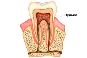 Рыхлая ткань заполняющая полость зуба носит название. Что такое пульпа в зубе: функции, особенности строения, возрастные изменения