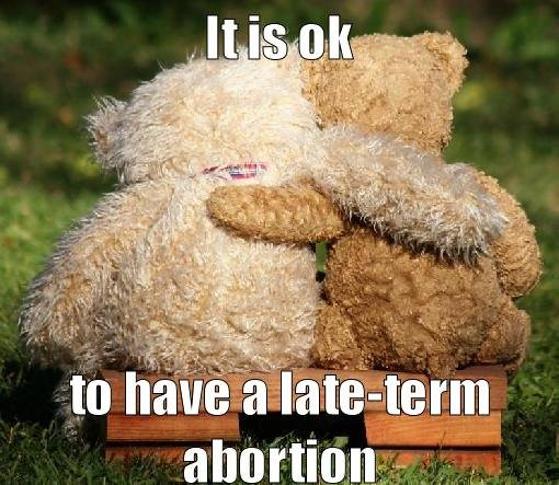 late term abortion