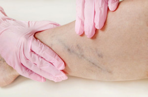 Varicose veins on the womans legs close up