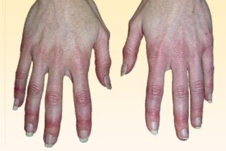 Раздражение на руках от моющих средств лечение