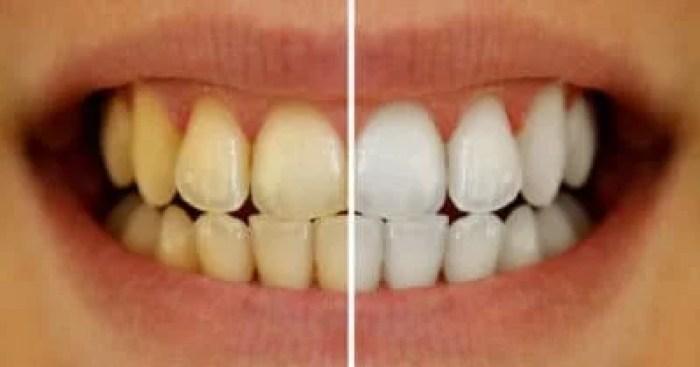 turmeric for teeth